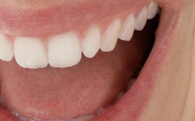 Ein Blick in die Mundhöhle - Zahngesundheit - Teckbote